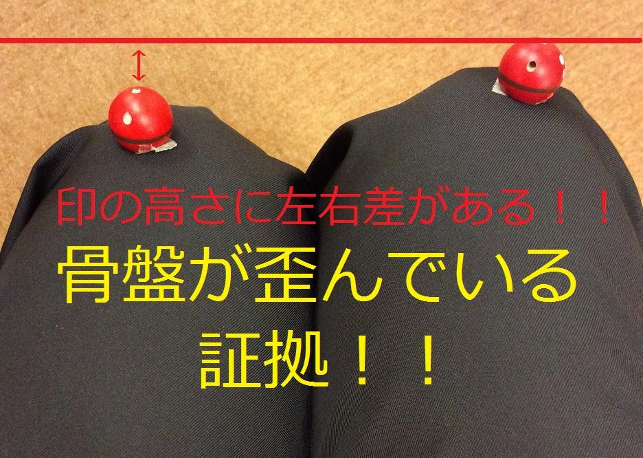 骨盤のゆがみ2.jpg