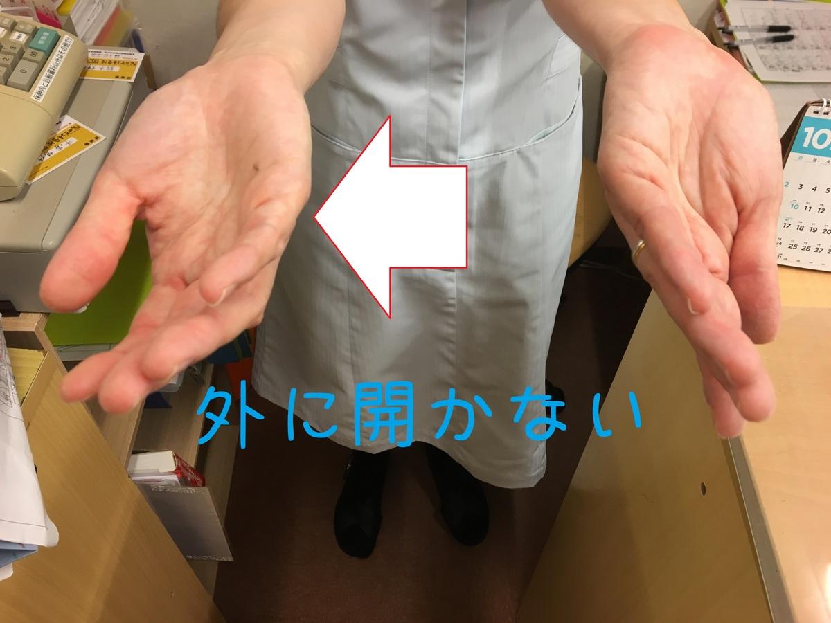 腱鞘炎2.JPG